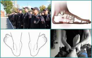 С какой степенью плоскостопия берут в полицию?